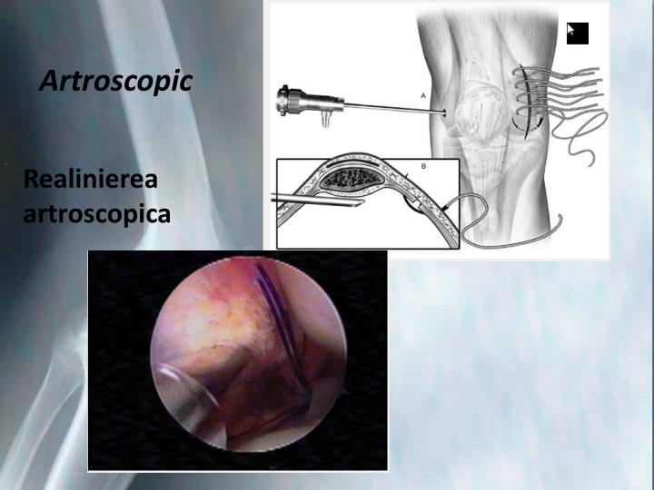 Artroscopic