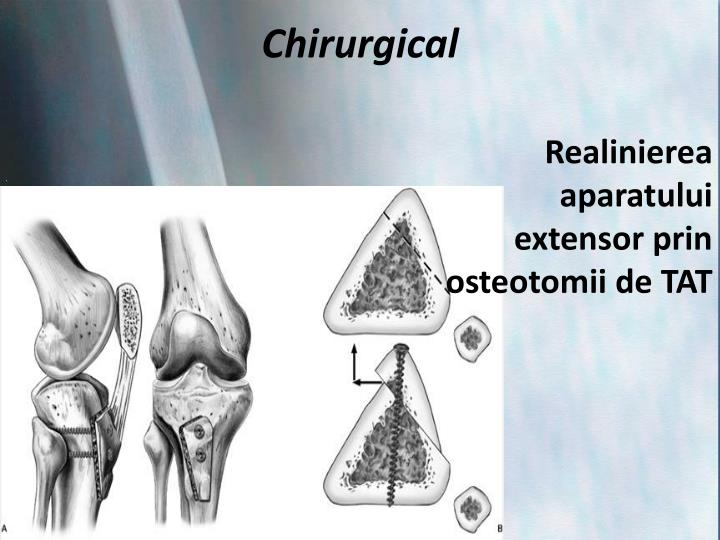 Chirurgical