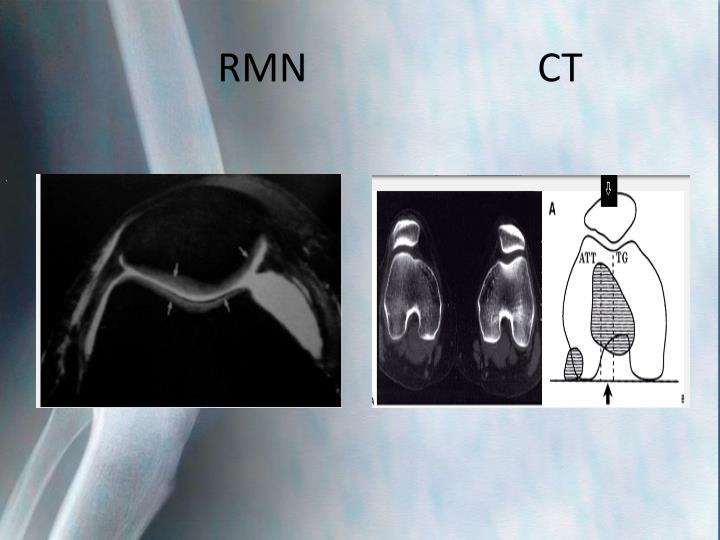 RMN                       CT