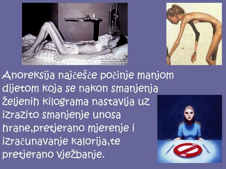Anoreksija najčešće počinje manjom