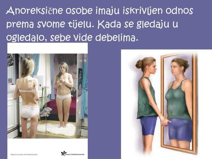 Anoreksične osobe imaju iskrivljen odnos