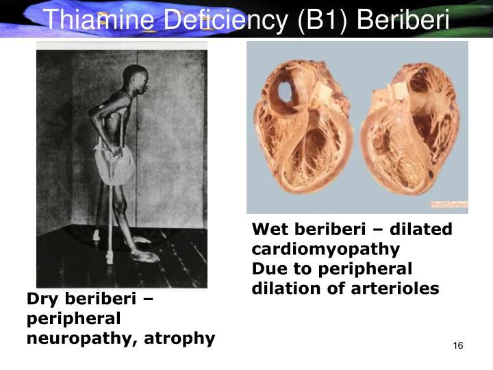 Thiamine Deficiency (B1) Beriberi