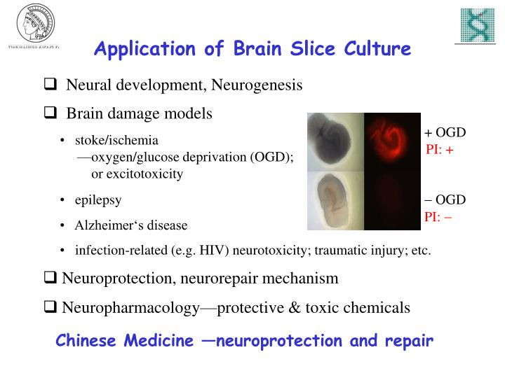 Application of Brain Slice Culture
