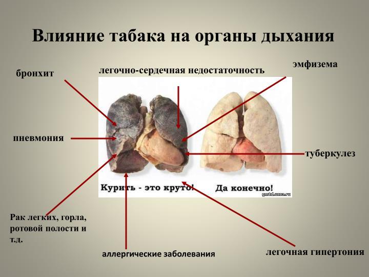 Влияние табака на органы дыхания