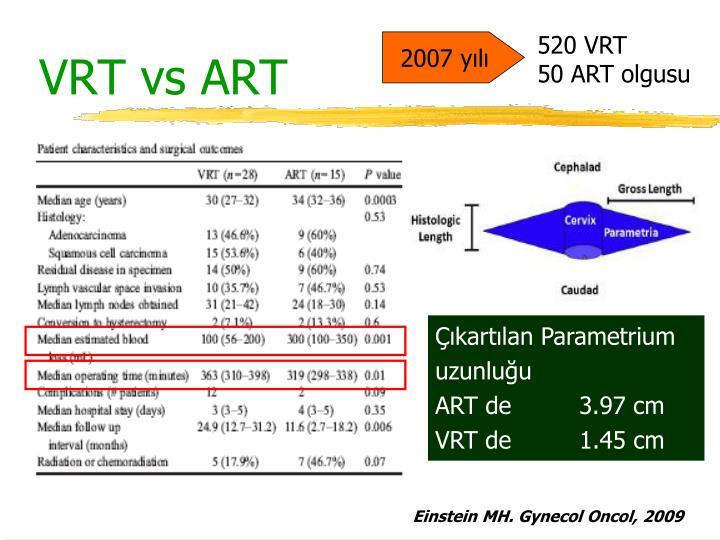 VRT vs ART