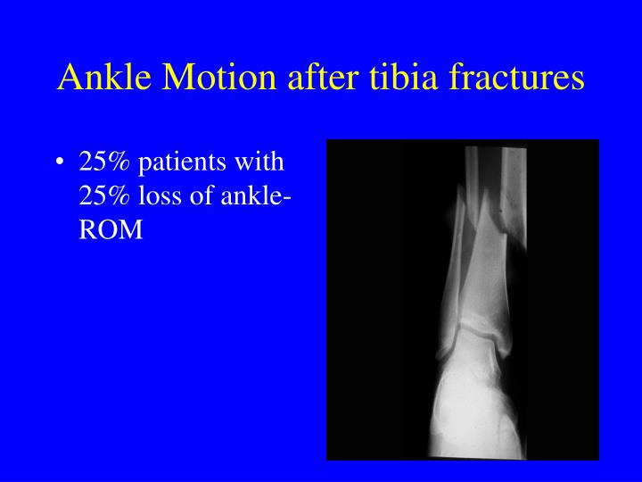 25% patients with 25% loss of ankle-ROM
