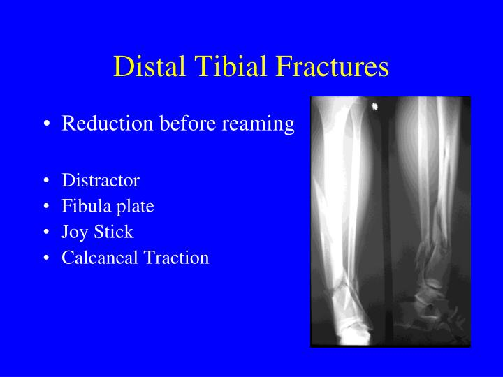 Distal Tibial Fractures