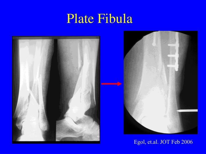Plate Fibula