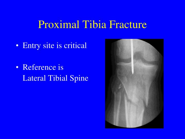 Proximal Tibia Fracture