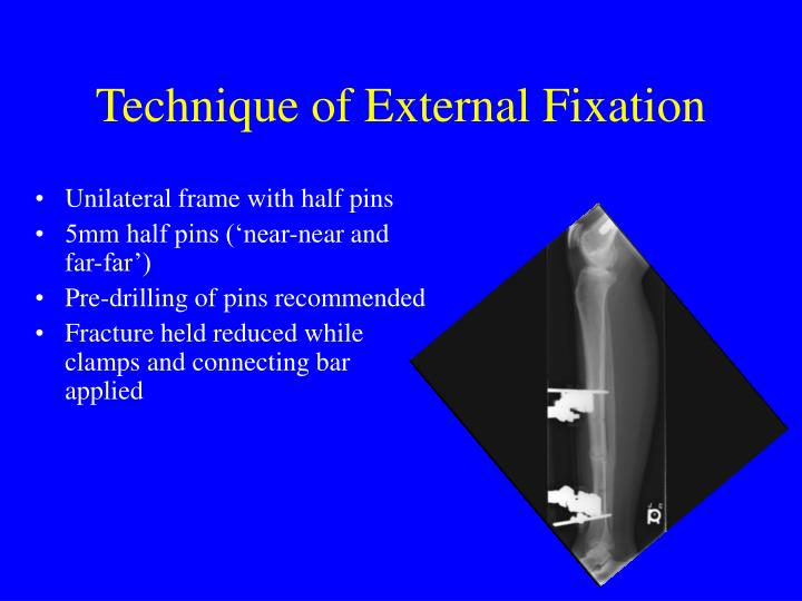 Technique of External Fixation