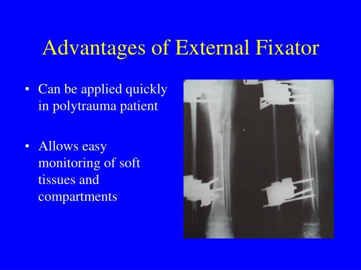 Advantages of External Fixator