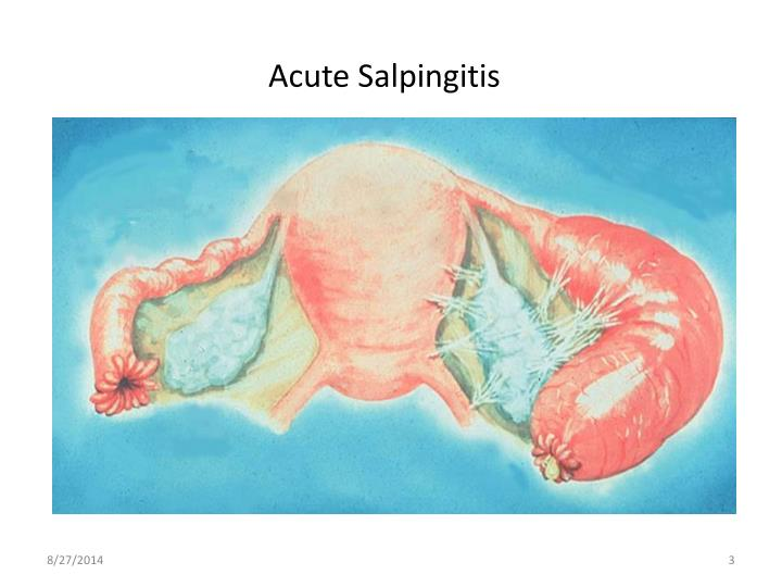 Acute Salpingitis