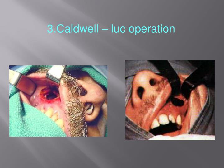 3.Caldwell – luc operation