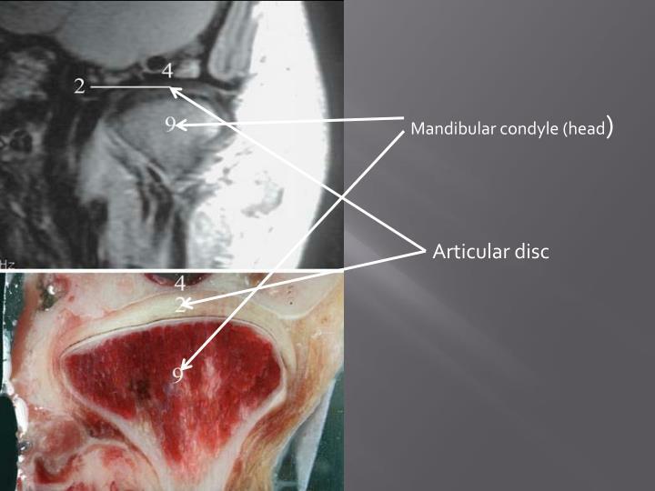 Mandibular condyle (head