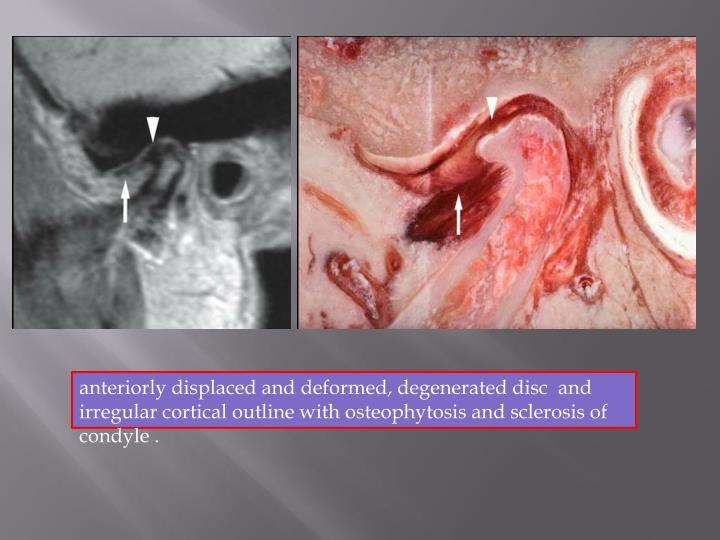 anteriorly