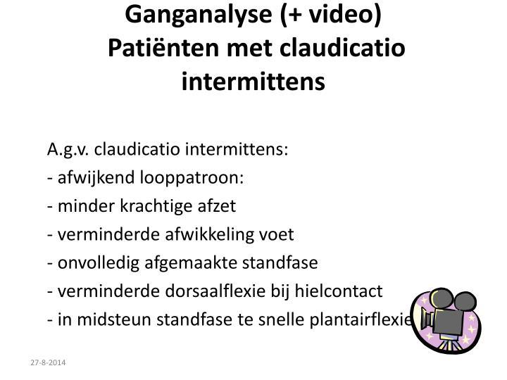 Ganganalyse (+ video)
