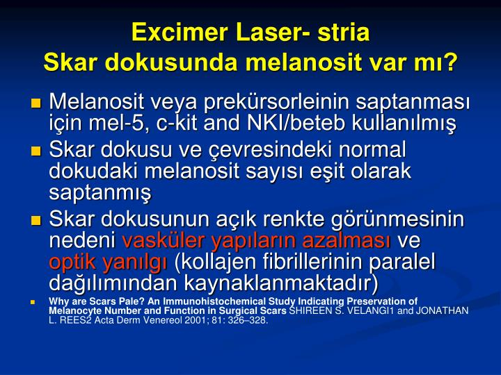 Excimer Laser- stria