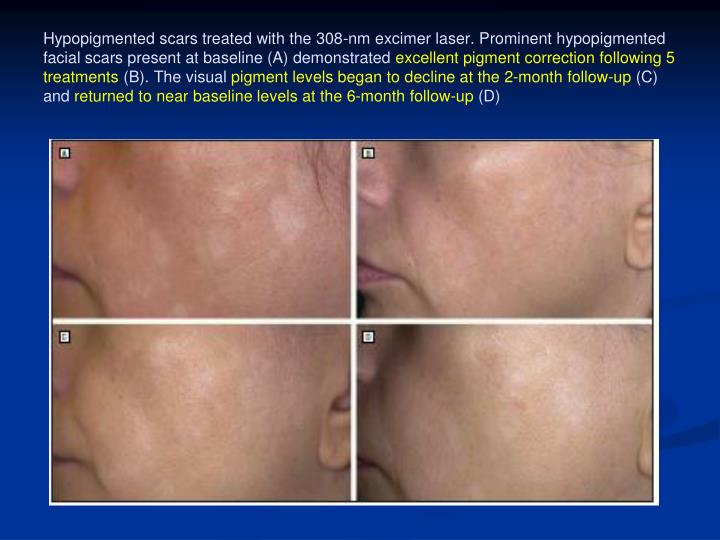 Hypopigmented scars treated with the 308-nm excimer laser. Prominent hypopigmented facial scars present at baseline (A) demonstrated