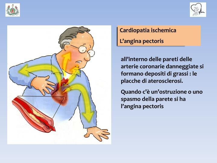 Le coronarie