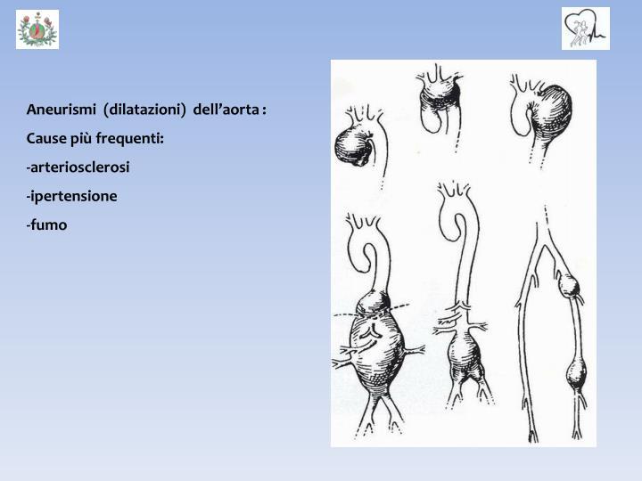 Aneurismi  (dilatazioni)  dell'aorta :