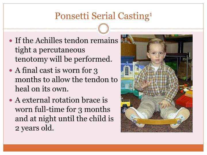 Ponsetti Serial Casting