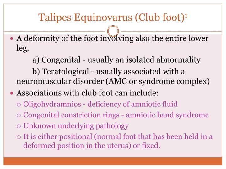 Talipes Equinovarus (Club foot)