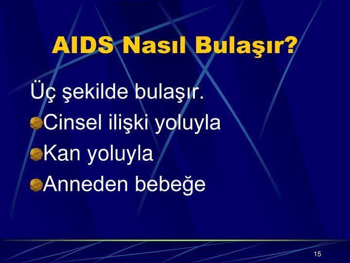 AIDS Nasıl Bulaşır?