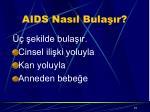 aids nas l bula r