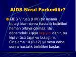 aids nas l farkedilir