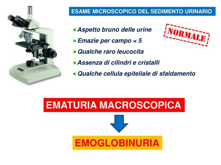 ESAME MICROSCOPICO DEL SEDIMENTO URINARIO
