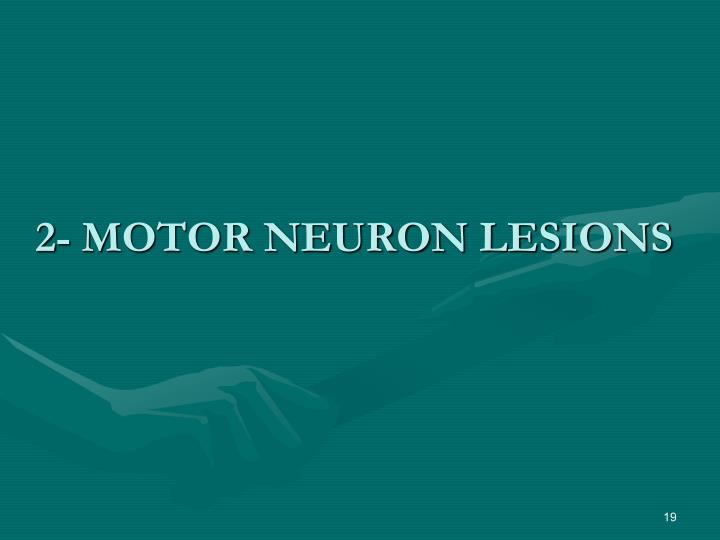 2- MOTOR NEURON LESIONS