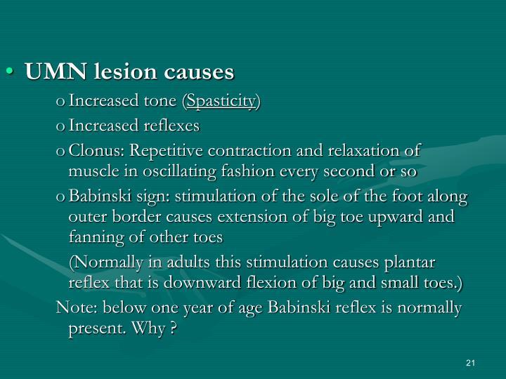 UMN lesion causes