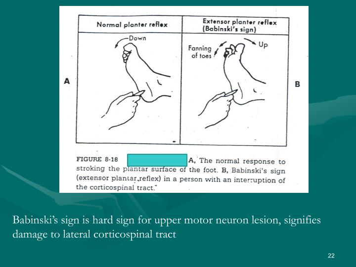 Babinski's sign is hard sign for upper motor neuron lesion, signifies damage to lateral corticospinal tract