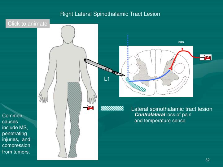 Contralateral