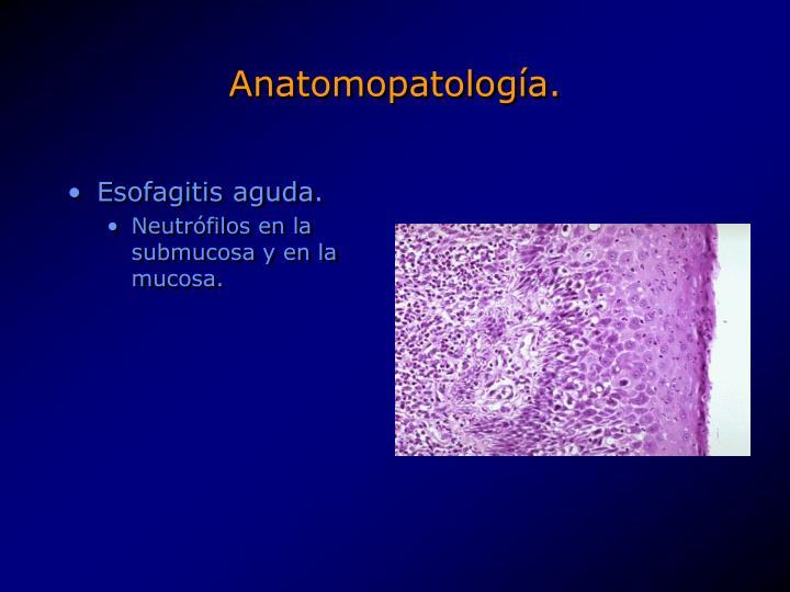 Anatomopatología.