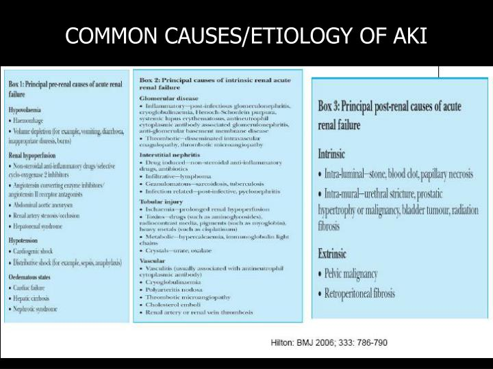 COMMON CAUSES/ETIOLOGY OF AKI