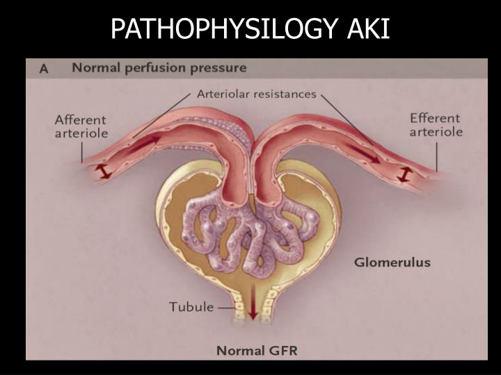 PATHOPHYSILOGY AKI