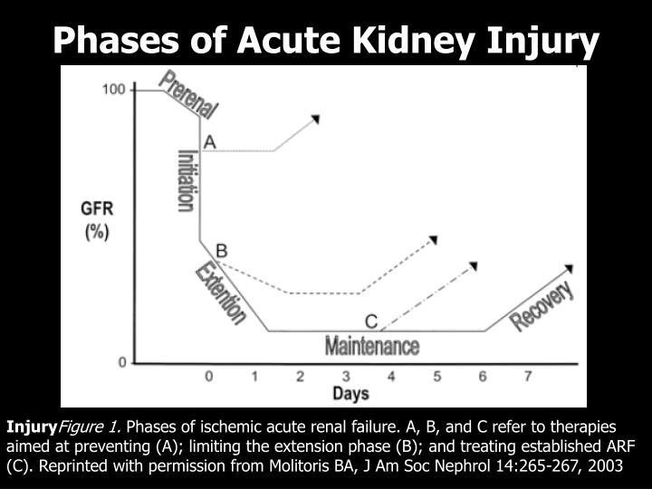 Phases of Acute Kidney Injury