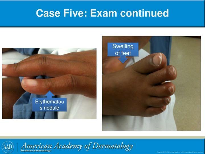 Case Five: Exam continued