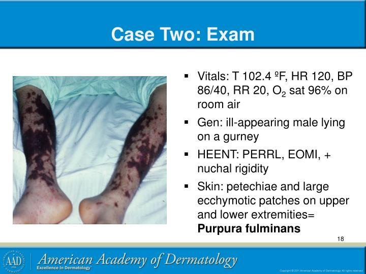 Case Two: Exam