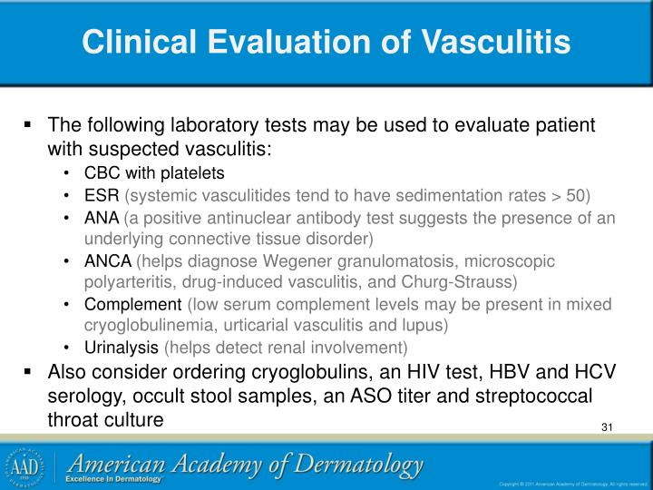 Clinical Evaluation of Vasculitis