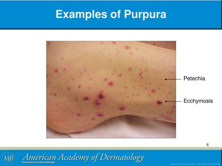 Examples of Purpura