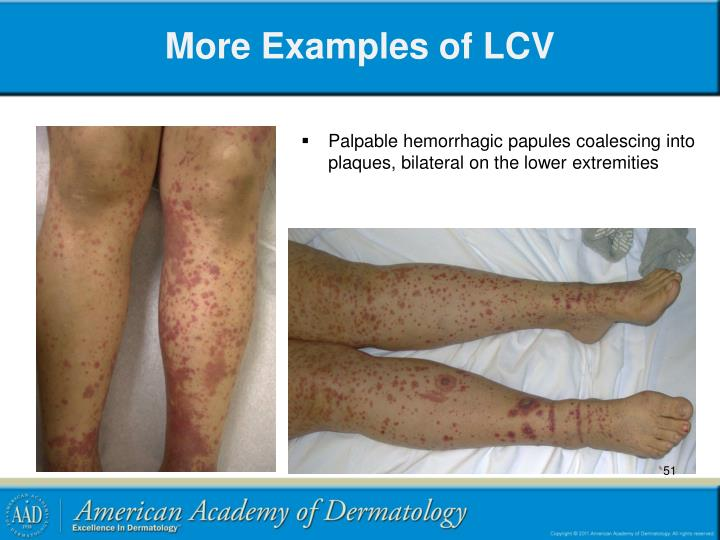 More Examples of LCV