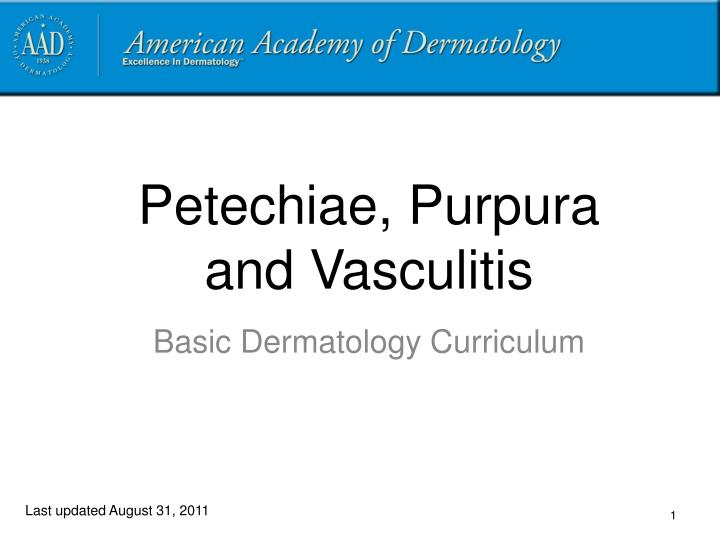 Petechiae purpura and vasculitis