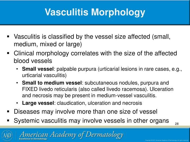 Vasculitis Morphology