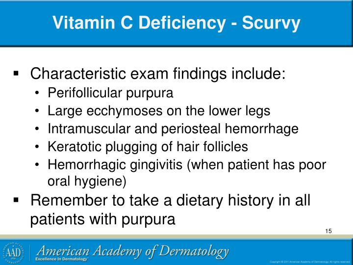 Vitamin C Deficiency - Scurvy