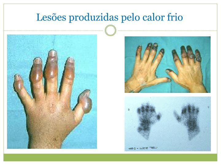 Lesões produzidas pelo calor frio