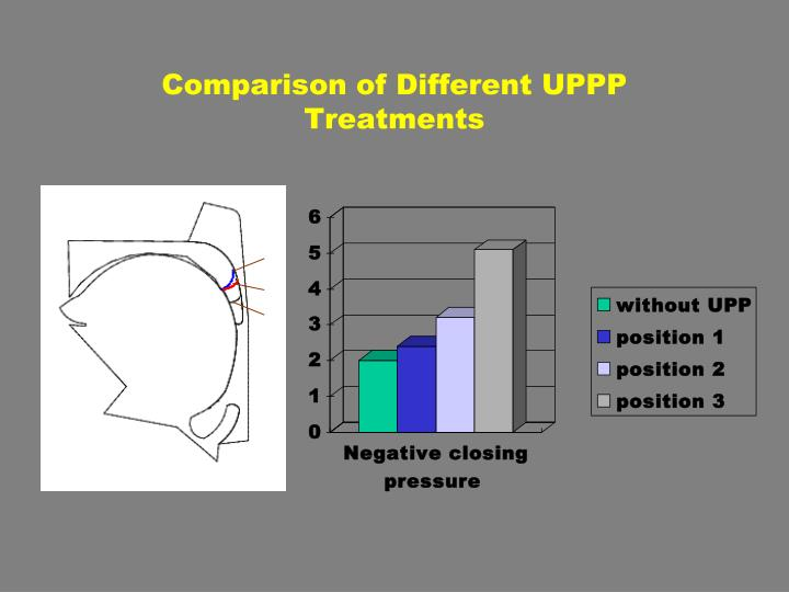 Comparison of Different UPPP Treatments
