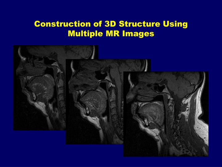 Construction of 3D Structure Using Multiple MR Images