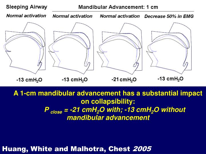 Mandibular Advancement